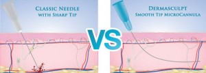 Cannula Vs Needles
