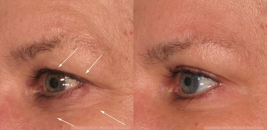 pelleve-eyes2-before-after