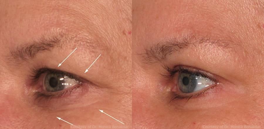 pelleve-eyes2-before-after