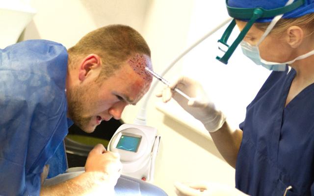 Rooney-hair-transplant