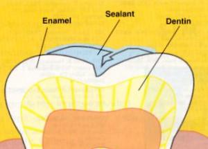 sealants (1)