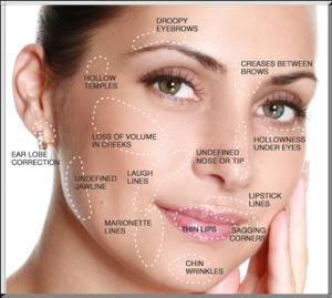Dermal-Filler-Treatment-Areas-3