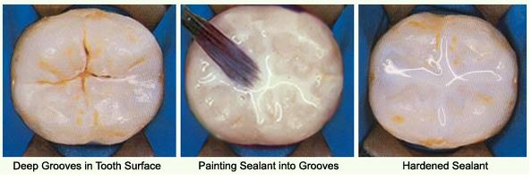 dental-sealants